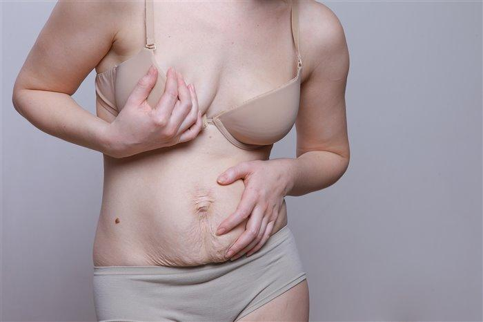 How to tighten the loose skin of the abdomen after weight loss ?