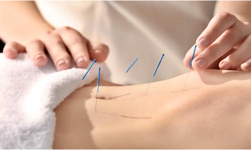 Acupuncture for detox