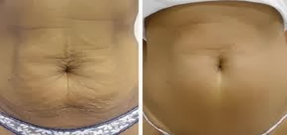 How to tighten the skin after weight loss?
