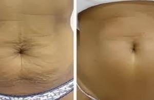 Как да стегнем кожата след отслабване?